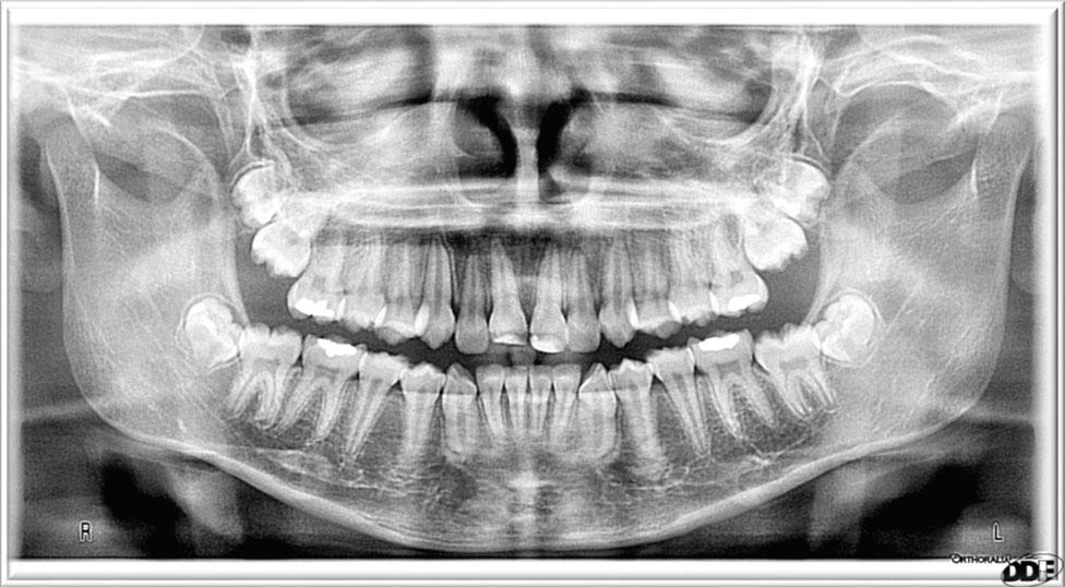 dental radiology pdf